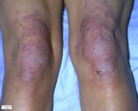 Dermatomyosite 2