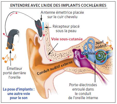 Implants cochleaires