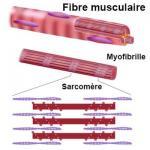 Myopathie
