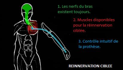 Reinnervation 3